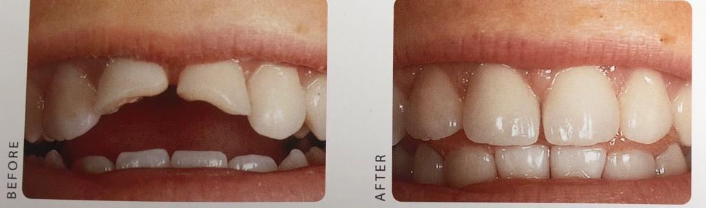 Smile Makeover Crowns