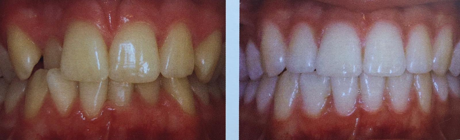 Smile Makeover Tooth Whitening